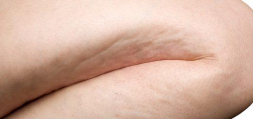 cellulite maigrir des cuisses